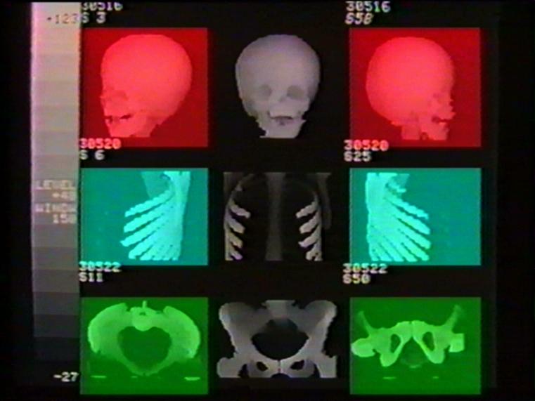 Dialogo digitale del corpo umano1